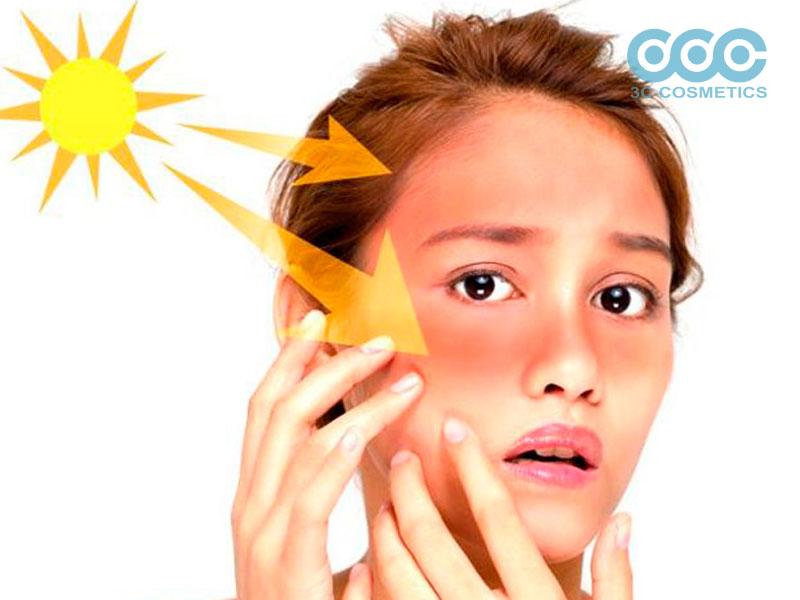 Nguyên nhân bên ngoài gây ra nám da, tàn nhang
